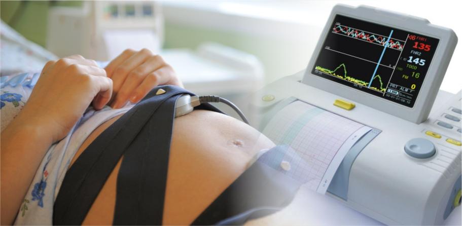 КТГ при беременности: норма